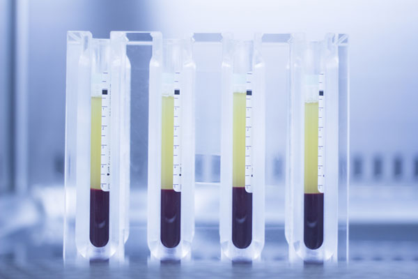 Blood samples separated for PRP Therapy